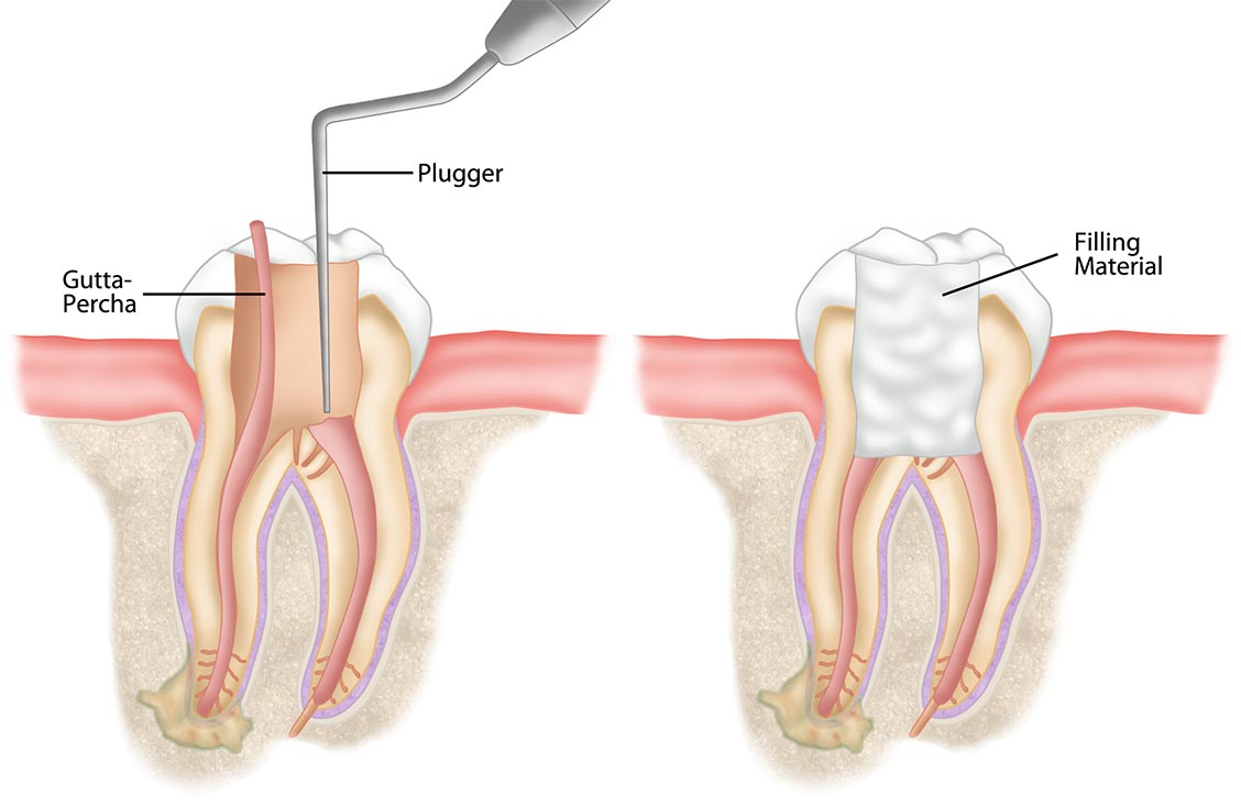 root-canal-treatment-2-1