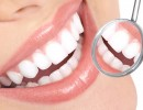 beresford-dental-implants-image
