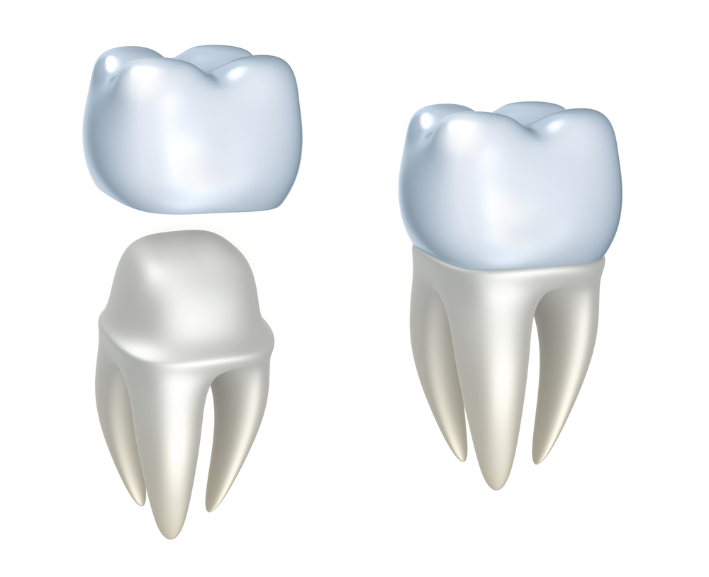 san-jose-dental-crowns